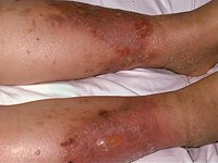 cellulitis_and_soft_tissue_infections1698.jpg