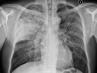 pulmonary_infections46171.jpg