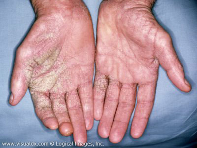Go To For Scabies Emergency Room